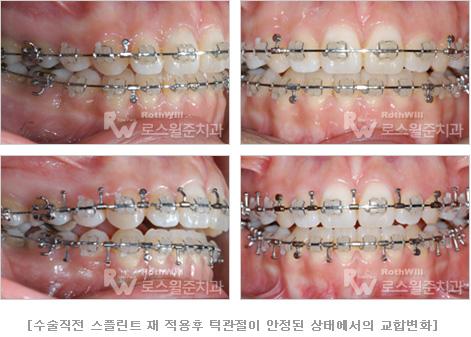수술직전 스플린트 재 적용후 턱관절이 안정된 상태에서의 교합변화